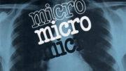 microintro
